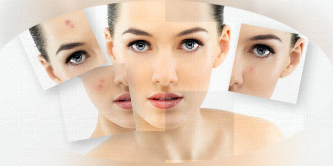 amitumi_reduce-pimple-spot