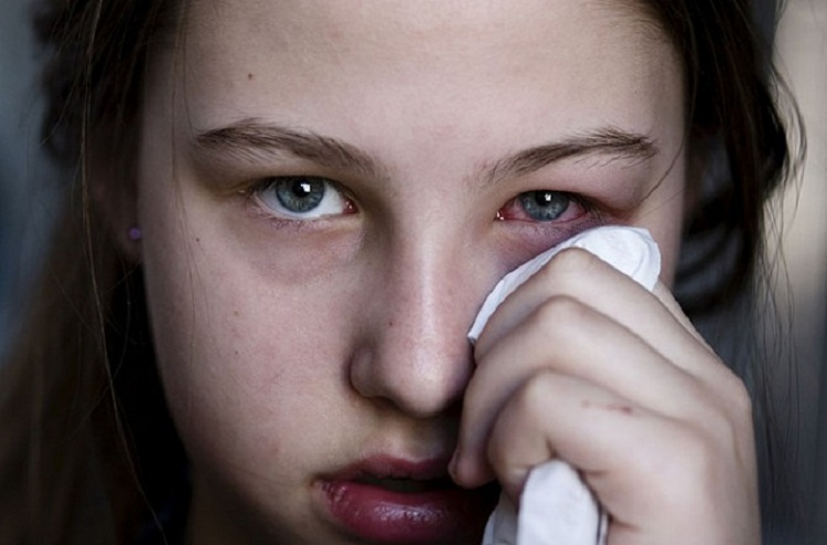 what-is-safe-eye-infection-treatment-670x442
