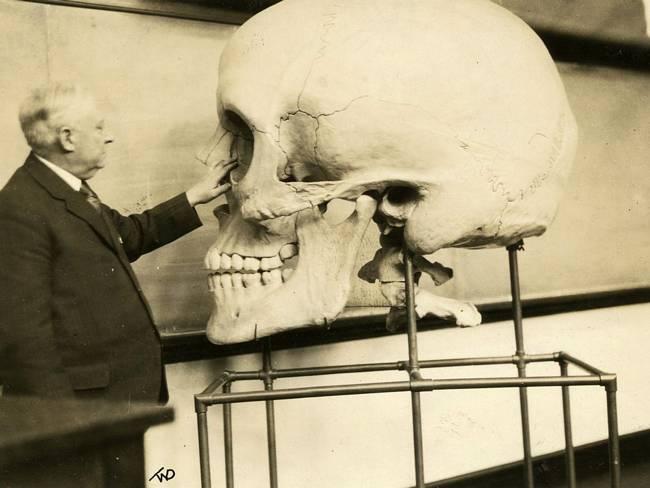 Fake-Skull-made-in-1890s.Haris-p-Mosher-Harvard-MS-1929