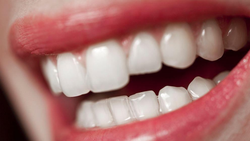 GTY_human_teeth_tk_130731_16x9_992