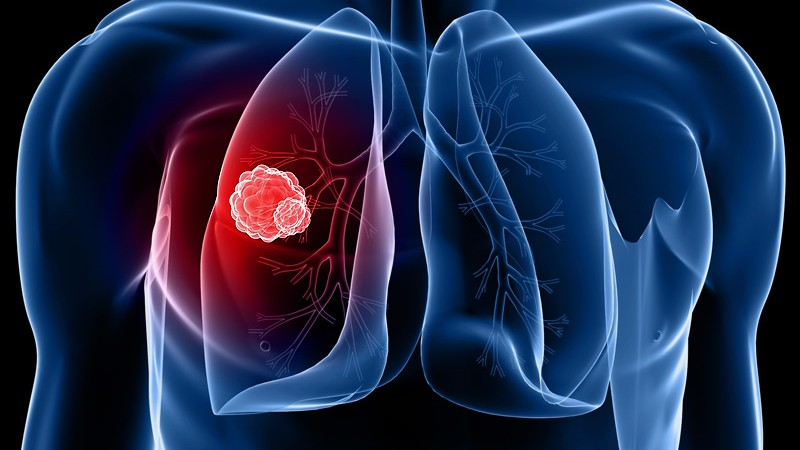 dt_140501_lung_cancer_800x600_0
