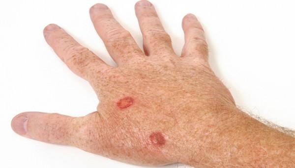 51151-skincancer-8-3-16-e1457455916472