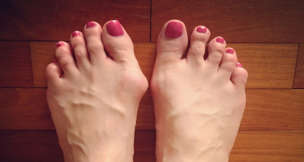 Ease-Your-Bunions-in-Just-10-Days-with-This-Powerful-Home-Remedy