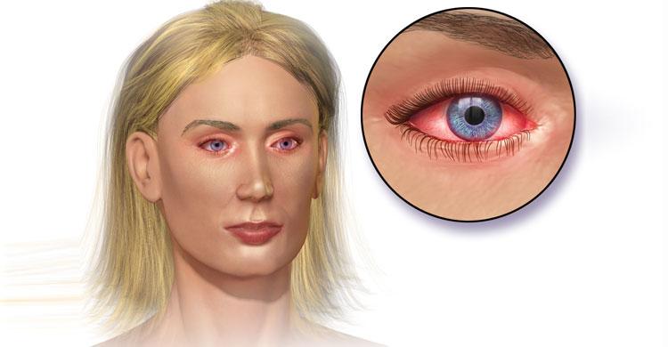 eye-allergy20160525043922