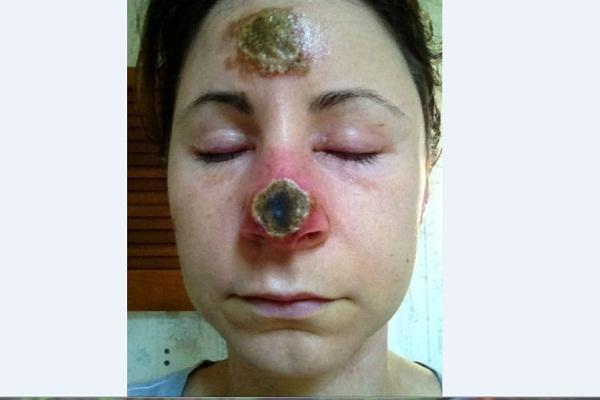 skin-cancer_114954