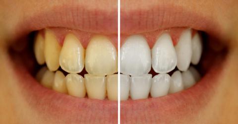 teeth_1