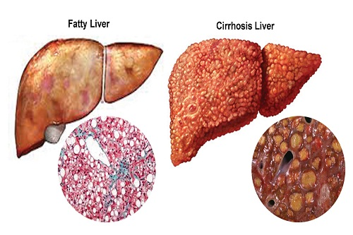 liver-cancer-cirrhosis