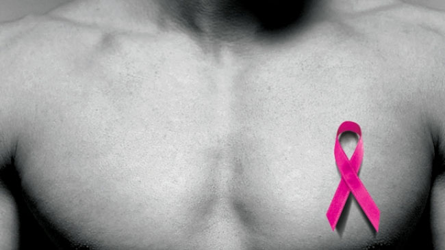 male_breast_cancer_23325_1472205262