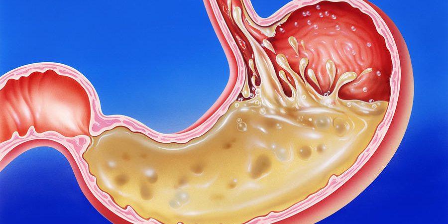 stomach-acid-reflux