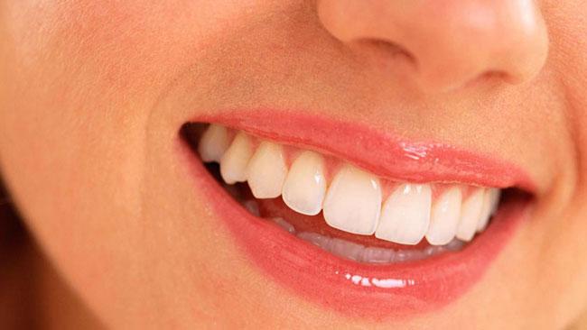 teeth_24059_1472818269