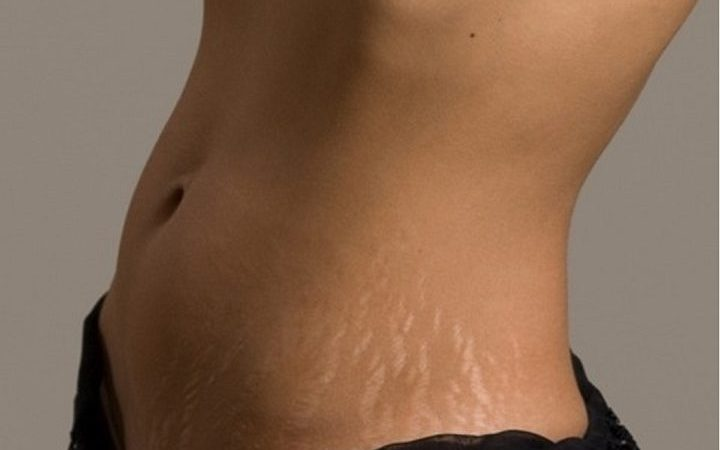 the-cost-of-getting-rid-of-stretch-marks-720x509