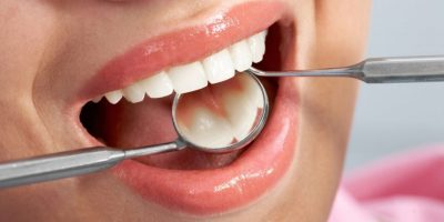 dental-examscleaningsprotectyourteeth-postfeaturedimage