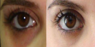 eye_31412_1479699705