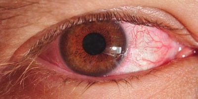 home-remedies-for-pink-eye